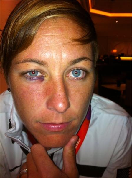 #soccer wound update: @AbbyWambach: Thanks for all the well wishes. Eye is healing fine. #reversesmokeyeye #notcool <a href=