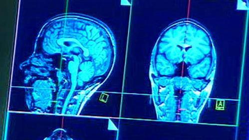 Снимок головы ребенка при сотрясении мозга