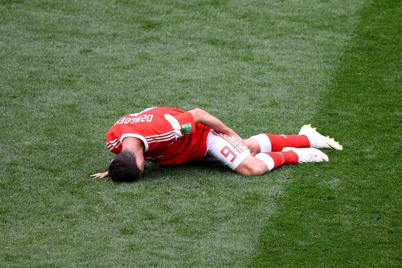 Así se lesionó Dzagoev. TeamRussia