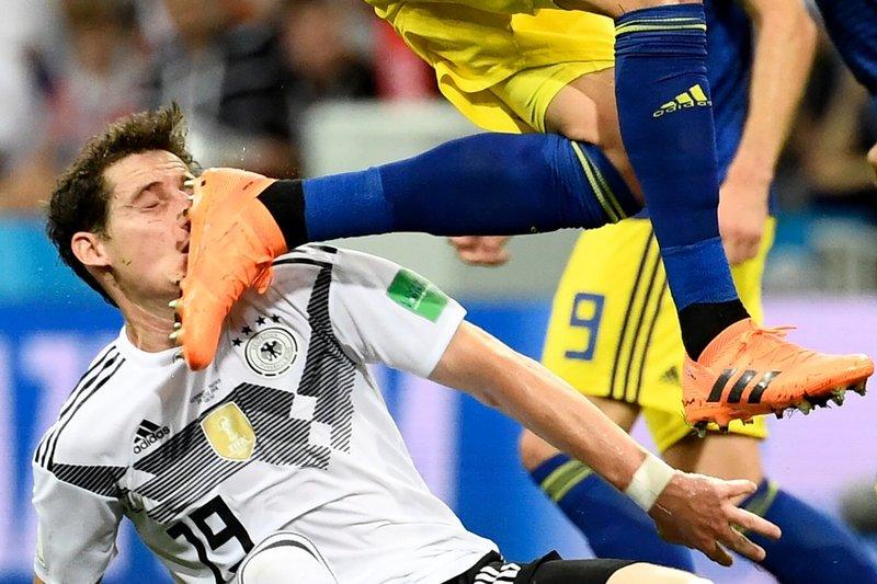 Así fue el golpe que dejó KO a Rudy. DFB_Team_EN