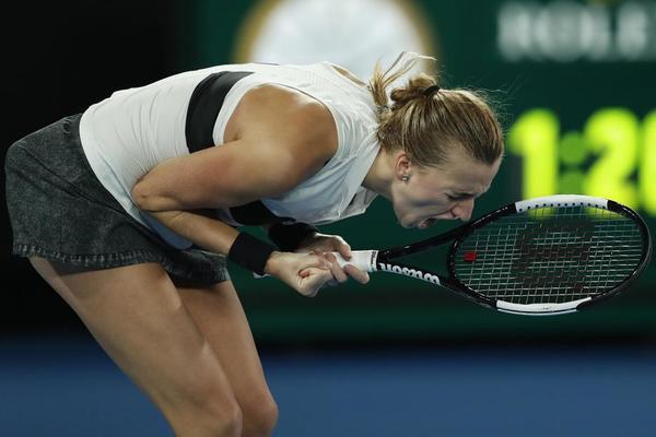 Petra Kvitova, camino de la gran remontada, del milagro checo en Melbourne FOTO: EFE